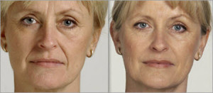 frown lines eliminated with botox injections at Medical Day Spa of Chapel Hill