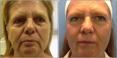 fractiional-laser-before-after