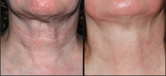 laser-skin-tightening-before-and-after