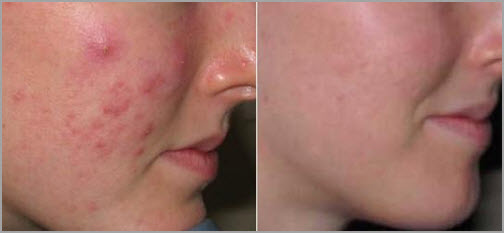 microdermabrasion-peel-before-after
