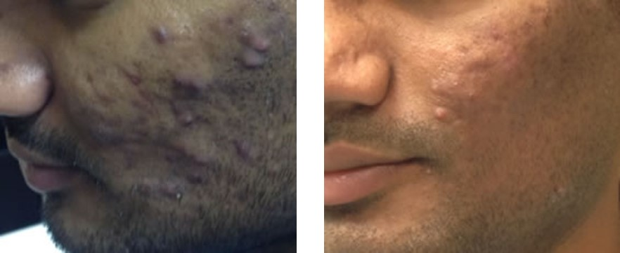Girl plastic surgery facial scars this view