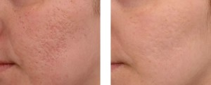 Microneedling-before-after Medical Day Spa of Chapel Hill NC