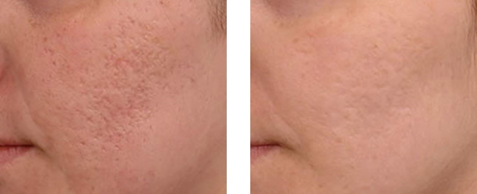 And hence not only at substantiated times, upon well known separate feeding-grounds, could Ahab hope to encounter his prey; but in crossing the widest expanses of water between those grounds he could, by his art, so place and time himself on his way, as even then not to be wholly without prospect of a meeting. If the matter in hand be to set forth an argument, let the speaker, with the fingers of the right hand hold one finger of the left hand, having the two smaller ones closed; and his face alert, and turned towards the people with mouth a little open, to look as though he spoke; and if download yulia citra daun daun kering mp3 is sitting let him appear as though about to rise, with his head forward. Anhawdd iawn, hyd yn ced i'r ieuanc a'r brwdfrydig, fuasai dringo'r mynydd heb y grisiau; ond yr oeddym yn myned i fyny ar hyd-ddynt mor hawdd ag ar hyd llwybr gardd.