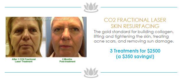 CO2 Fractional Laser Skin Resurfacing Special