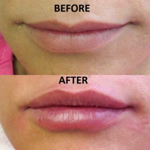Juvederm lips-before-and-after-Juvederm-injection-Medical-Day-Spa-of-Chapel-Hill-NC