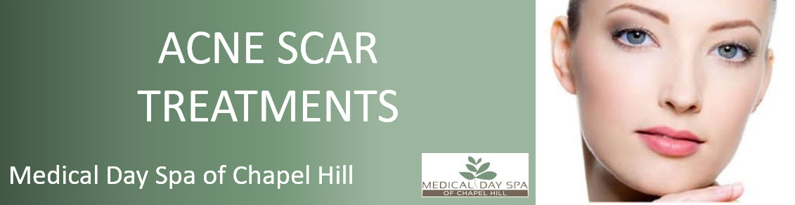 Acne Scar Treatments at Medical Day Spa of Chapel Hill NC