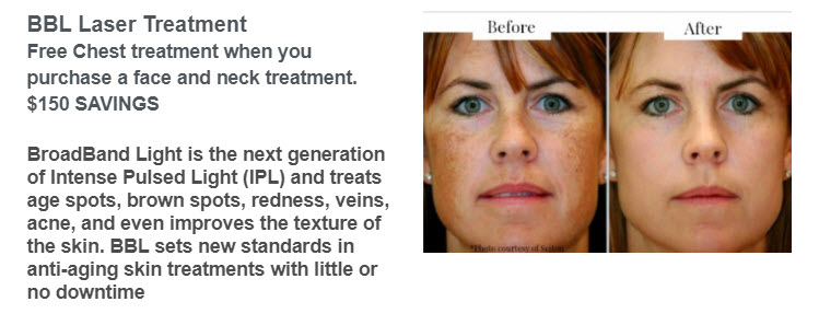 BBL Laser Treatment Special by Liberty at Medical Day Spa of Chapel Hill NC